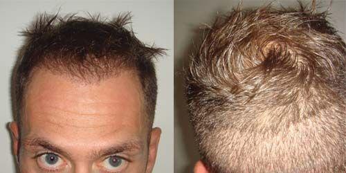 Vedi i risultati della rigenerazione capelli: rigenerazione follicolare ReGENE G12, brevetto contro caduta dei capelli e calvizie. Esclusiva LaCLINIQUE