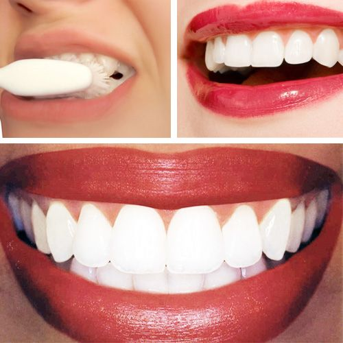 Dr. Oz's home remedy for teeth whitening -- Works but don't do it too often, it will make your teeth sensitive! - Baking Soda (around 1/4 cup of baking soda) - Lemon Juice (from half of a lemon) Let sit on teeth one min and brush off with tooth paste and water.