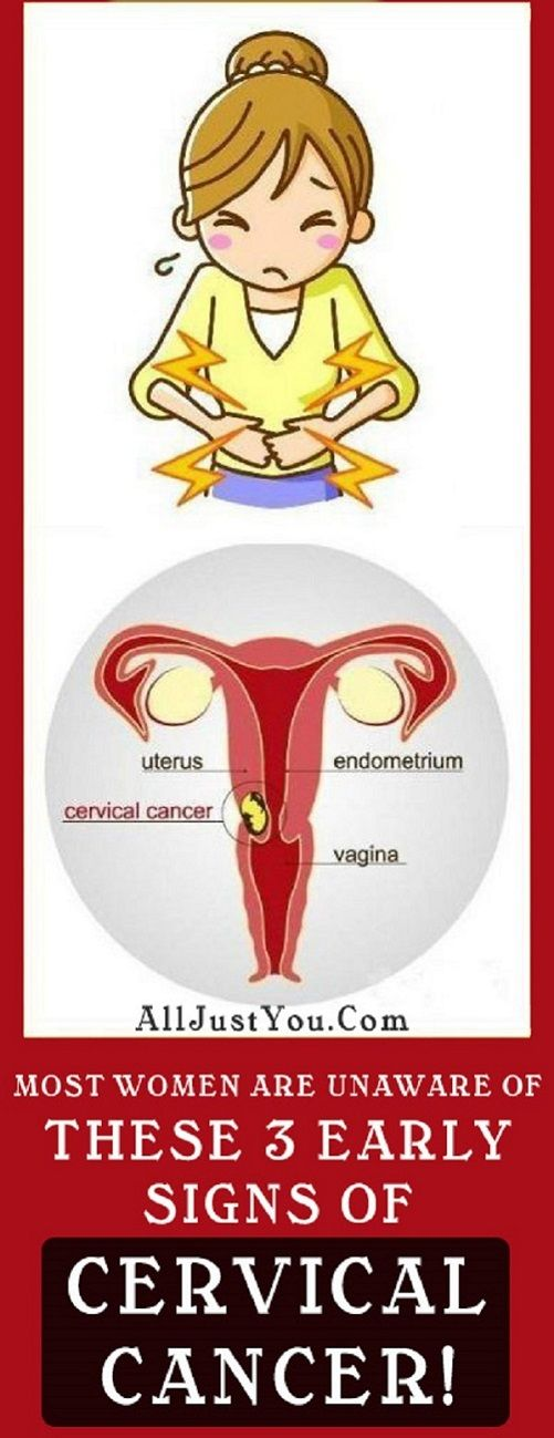 Most Women Are Unaware Of These 3 Early Signs Of Cervical Cancer Most Women Are Unaware Of These 3 Early Signs Of Cervical Cancer #MostWomenAreUnawareOfThese3EarlySignsOfCervicalCancer