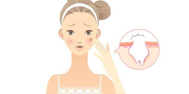 Obat Penghilang Bekas Jerawat Di Apotik - Langsung Pesan ...