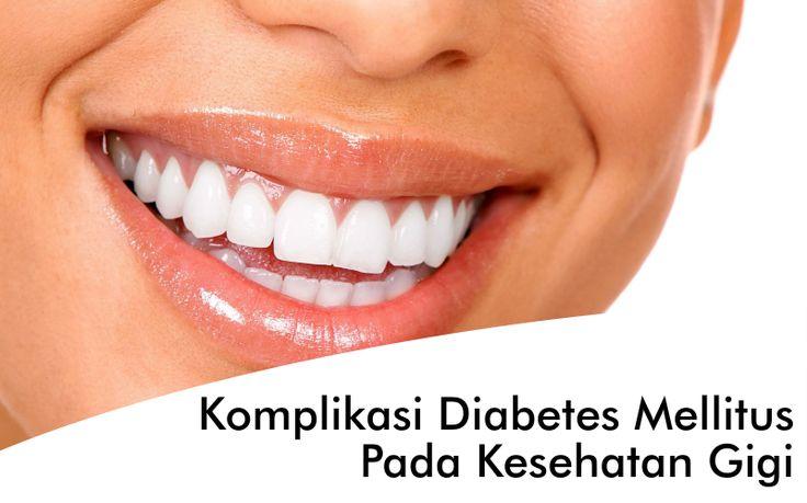 Komplikasi Diabetes Mellitus Pada Kesehatan Gigi. Masalah yang mungkin ditimbulkan adalah gingivitis, periodontitis, karies gigi, kandidisiasis, abses, infe