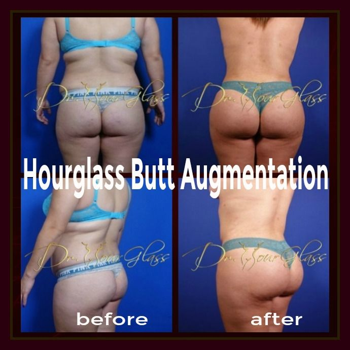 We're very proud to share with you the result of her Hourglass Butt Augmentation. As you can see, this procedure ideally make your buttocks more attractive and overall gorgeous. She's so happy to see her final result: