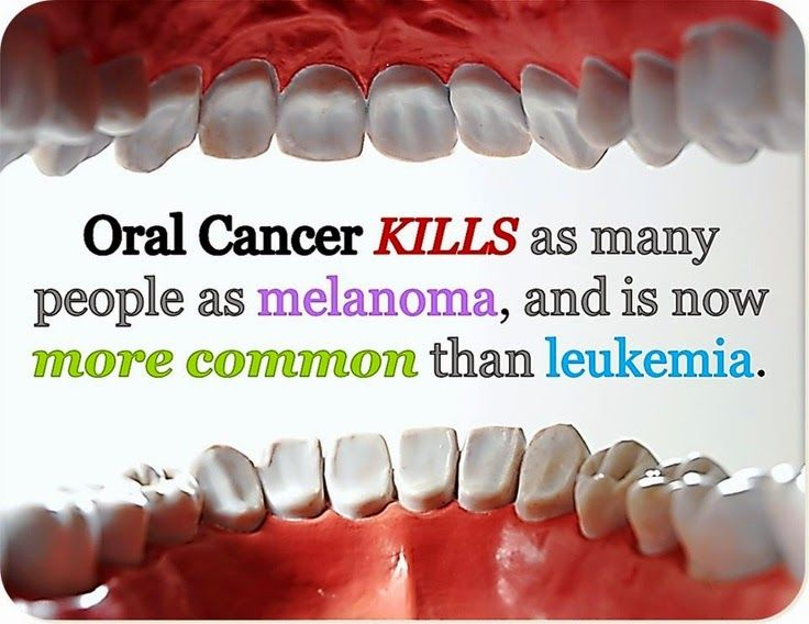 Did you know that Oral Cancer was that serious? Don't believe the myth, that only smokers or those who chew tobacco can get #OralCancer, that isn't true. This is another reason why regular check-ups are so important. Early detection and treatment is the key! If it's been longer than 6 months from your last #dental visit, give us a call to schedule an appt.> (314) 968-3533 Pin it here: (image credit: plus.google.com) #StLouis #Missouri #Dentist #OralCancer