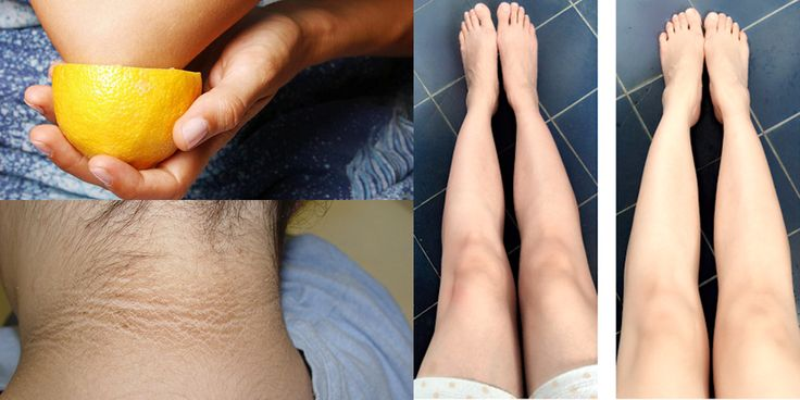 Hoe je droge plekken en donkere huid van je nek, ellebogen , knieën en oksels kan verwijderen ! | Dagelijks.nu