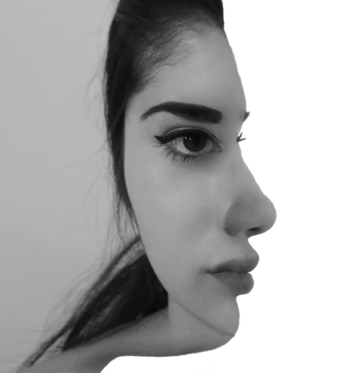 It is confusing because my mind gets two different pictures, a woman facing straight forward, and woman who is facing the side. The body functions of the face are perfectly lined up to give the illusion of both side and frontal part of the face.