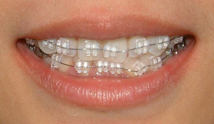 White Braces Tumblr Colors Braces Pinterest Teeth