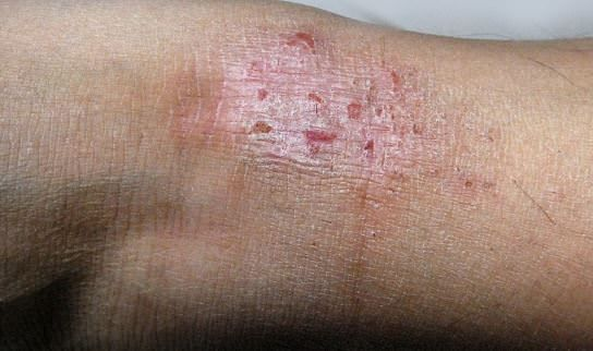 how to get rid of skin allergy on body