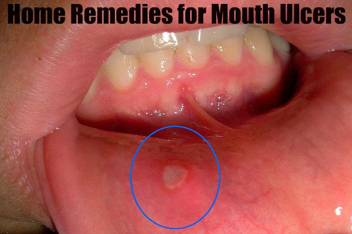 Causes, signs and Symptoms, Prevention, natural effective Home Remedies for mouth ulcers. These remedies soothe and speed up healing process of mouth sores