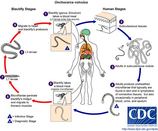 Onchocerciasis / River blindness, O. volvulus life cycle, Credit: DPDx, CDC
