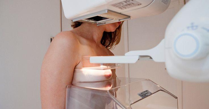 En ny kunstig intelligens kan afsløre brystkræft hos kvinder med en utrolig præcision, og den arbejder også 30 gange hurtigere end mennesker.