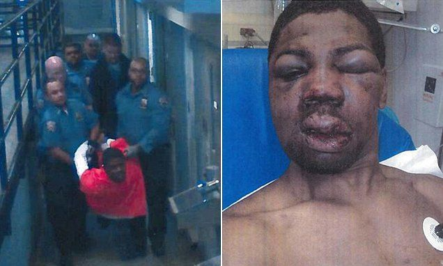 Brutal beating photo of inmate is released as judge says the six Rikers Island prison guards responsible should be fired  Read more: http://www.dailymail.co.uk/news/article-2774400/Firing-proposed-6-NYC-guards-inmate-beating.html#ixzz3FFb9SSCz  Follow us: @MailOnline on Twitter | DailyMail on Facebook