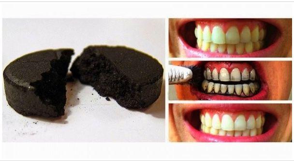 """""""Il trucchetto che il tuo dentista non ti svelerà mai!"""" Sbianca i tuoi denti intingendo un pennello in del semplice carbone attivo (lo puoi trovare in erboristeria) e spennellalo sui denti. Aspetta qualche minuto, sciacqua e il gioco é fatto! Denti bianchissimi!"""