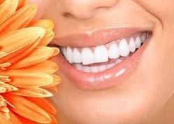 Todo lo que necesitas saber acerca de nuestro kit de Blanqueamiento Dental