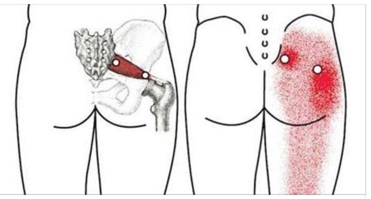 ¿En algún momento has sentido un fuerte dolor en la cintura que se extiende hasta la rodilla?, eso pasa cuando la ciática se inflama, esto es una molestia que resulta ser bastante incómoda para quien lo padece.