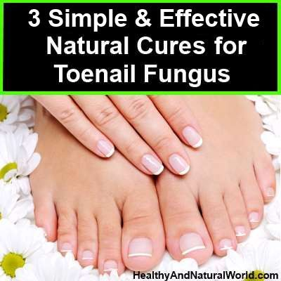 soak the feet in vinegar and water for at least 30 minutes, twice a day or more in order to help kill the fungus.It is also recommended to combine vinegar with hydrogen peroxide to form an even more effective solution;Soak toes or fingers in a 50/50 solution of 3% hydrogen peroxide and vinegar every day and fungus will be history in no time.