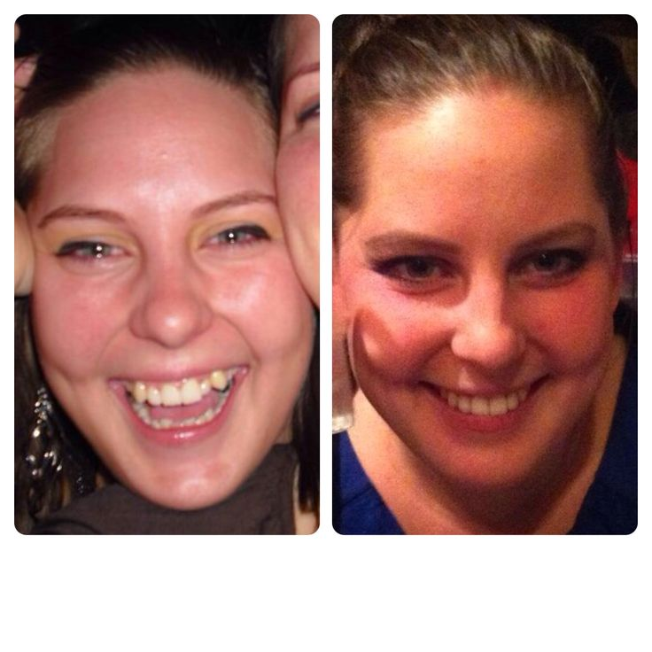 Before and after regulation. This was sooo worth it!! Love to smile now!