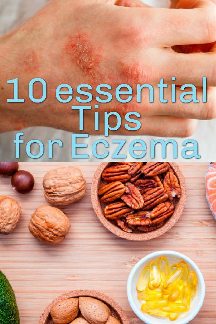"""""""Eczema is one of the oldest known diseases and also one of the most difficult to cure,"""" Purcell says. """"Those who suffer from any of these conditions will often tell you that when the symptoms of one disappear, another set appears."""""""