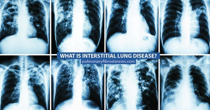 Interstitial lung disease (ILD) is an umbrella term given to a range of chronic lung diseases which all involve the interstitium. According to WebMD, the interstitium is part of the lungs' an…