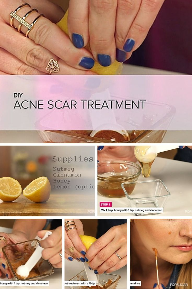DIY Dark Spots and Acne Scars Treatment - Whether you're dealing with sun spots, acne scars, or dark marks of any kind, head to your kitchen! An easy, one-step DIY will lighten up your spots over time.
