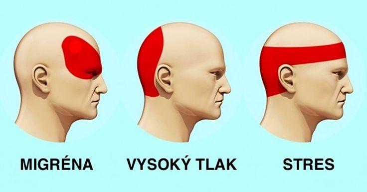 Při bolestech hlavy jsou lidé zvyklí okamžitě sahat po tabletkách. Jde však o nebezpečný zvyk, který může vést k poškození ledvin, jater a střev.