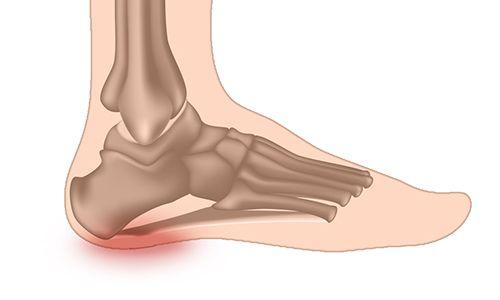 Douleur due à l'épine de Lenoir ( épine calcanéenne) : les symptômes et les méthodes de traitement | Clinique du pied CDP