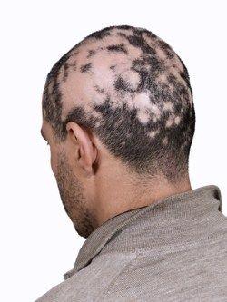 Alopecia areata é uma disfunção orgânica, conhecida como peladeira, se revela pela perda de cabelo ou de parte dos pelos no couro cabeludo.