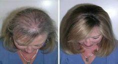 Dein Haar wird wachsen wie verrückt und du wirst ein Sehvermögen wie ein Adler… Chrascher66