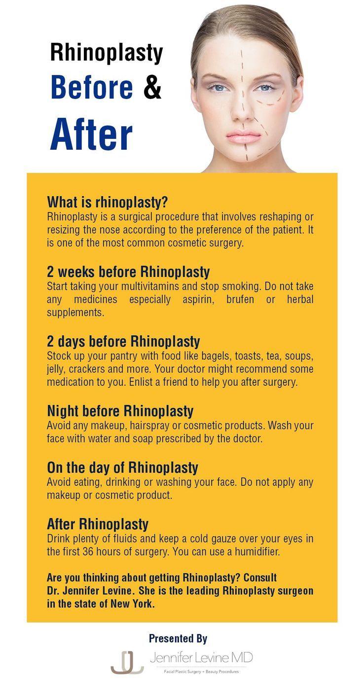 #andRhinoplasty #Rhinoplasty #rhinoplasty #before …