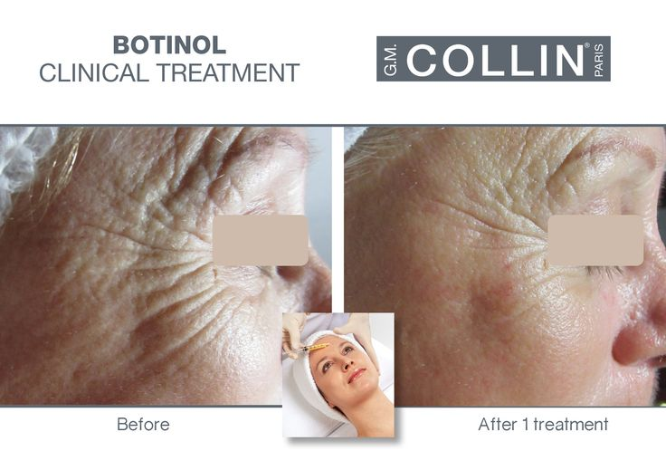 G.M. Collin Botinol - Before & After picture #beauty #cosmetics #skincare #clinical #clinicaltreatment #spa #spatreatment #antiaging #peptides #wrinkles #expressionlines #Botinol #gmcollin #gmcollinparis #gmcollinskincare