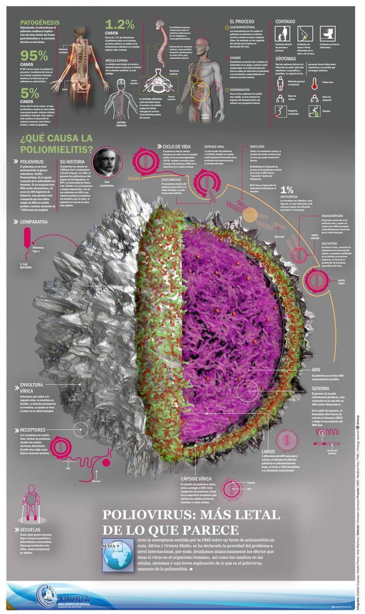 Poliomielitis #infografia