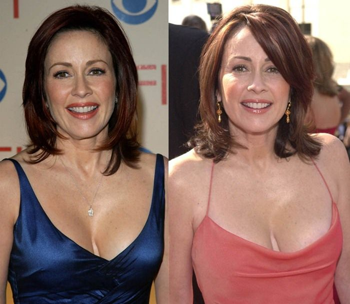 Patrica Heaton plastic surgery