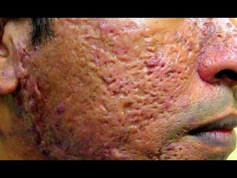Severe Acne Scars Treatment 68 best images ...