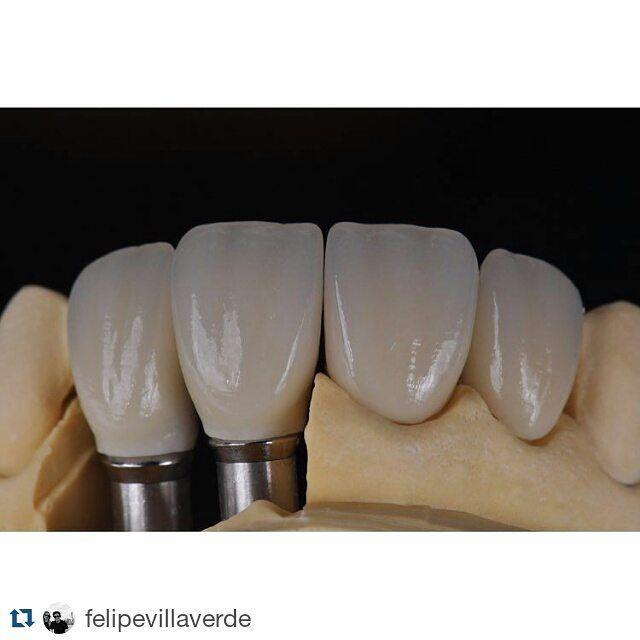 """@deolhonaodonto #deolhonaodonto #Repost @felipevillaverde """"SelfMade Emax HO  EmaxCeram sobre implantes  dentes escurecidos A etapa laboratorial tem sido um aprendizado constante"""" #OdontologiaEstética #ReabilitaçãoOral #EmaxPress #EmaxCeram #IvoclarVivadent #CosmeticDentistry by deolhonaodonto Our Cosmetic Dentistry Page: http://www.myimagedental.com/services/cosmetic-dentistry/ Google My Business: https://plus.google.com/ImageDentalStockton/about Our Yelp Page…"""
