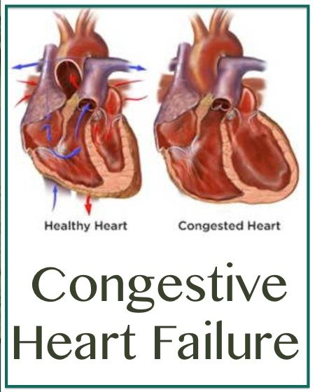 Congestive Heart FailurePositiveMed | Where Positive Thinking Impacts Life