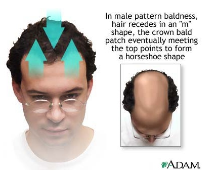 """Male Pattern Baldness - Male pattern hair loss begins at the temples and crown of the scalp. A person with a  """"receeding hairline"""" has this pattern of hair loss."""