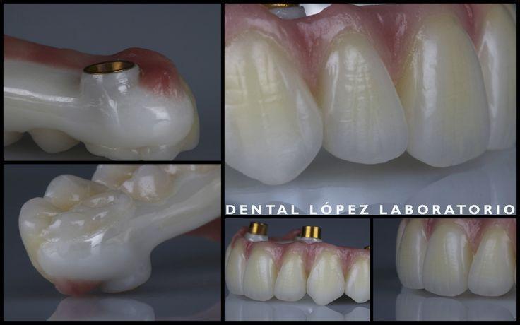 Rehabilitación en zirconio cerámica #dental #dentalopez