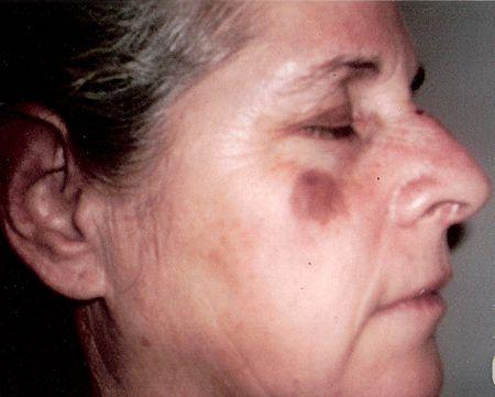 Facial Age Spot 6