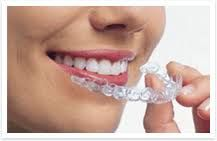 Dental braces (also known as braces, orthodontic cases, or cases) are devices used in orthodontics that align and straighten teeth and help position them.