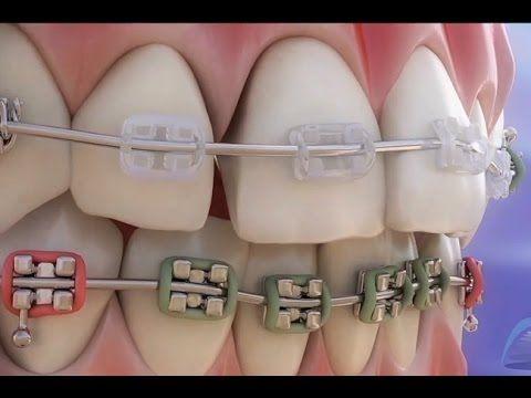 Como se mueven los dientes con brackets (simulación virtual) - YouTube