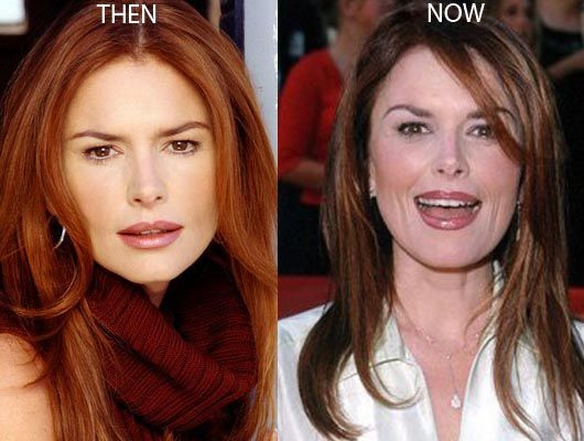 Roma Downey Plastic Surgery Before And After Photos – CelebLens.Com