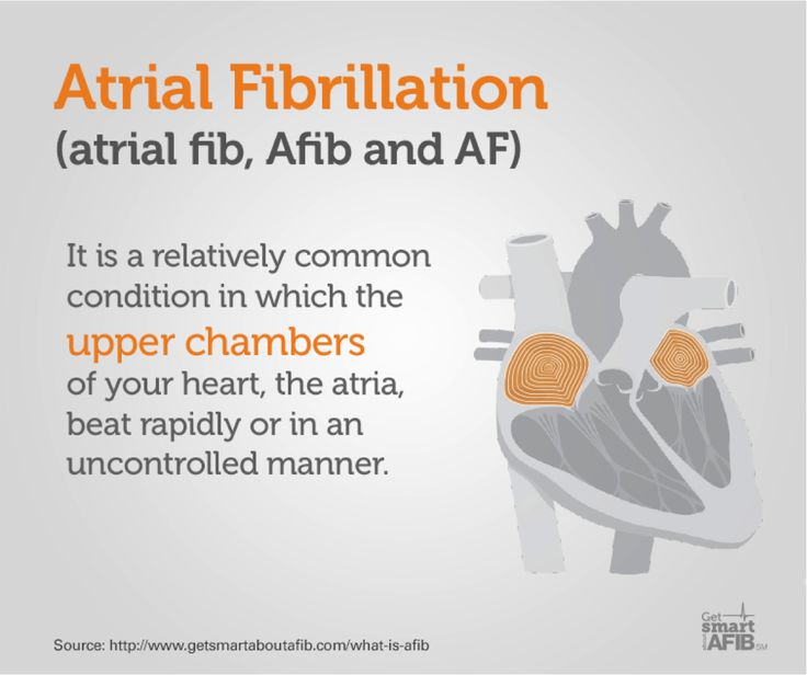 causes of afib Atrial fibrillation is characterized by episodes of uncoordinated electrical activity ( fibrillation) in the heart's upper chambers (the atria), which cause a fast and.