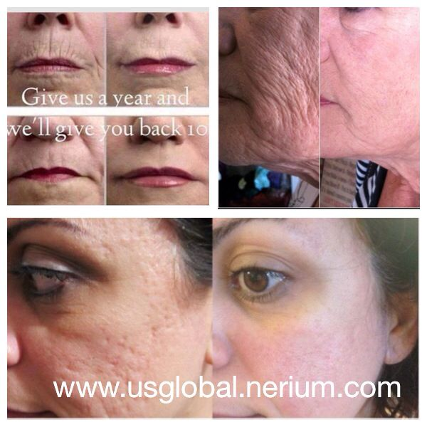 Amazing results with nerium!! http://usglobal.nerium.com