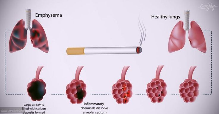 9 Lung Cancer Symptoms Non-Smokers Should Be Aware Of