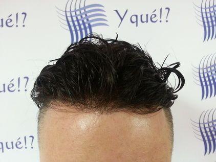 protesis capilares yque www.yque.com.es