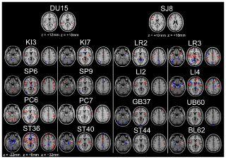 Áreas del cerebro que reaccionan cuando se punturan los puntos de acupuntura.