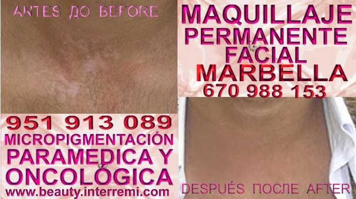 TRATAMIENTO PARA LAS MANCHAS DE VITILIGO Anti Vitiligo Micropigmentación Vitiligo Vitiligo Maquillaje Permanente Vitiligo Tratamiento en Marbella or Granada