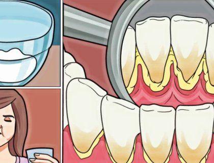 Убивает бактерии и отбеливает зубы: готовим домашний ополаскиватель для рта без химии