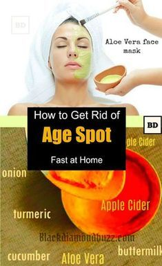 Age spots Removal - How to get rid of age spots ,brown spots or liver spots on face, hands and legs with this homemade age spot treatment cream and face masks