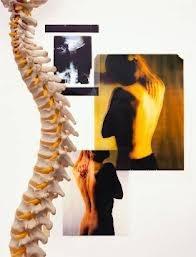 Training voor een STERKe rug