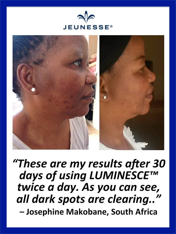 The best skin care line on the planet, to help rejuvenate your skin and make you healtheir and look younger. Josephine from South Africa was delighted with her results using the Luminesce skin care range to erase her dark spots. #healthy #antiaging www.Nstantlyageless.jeunesseglobal.com